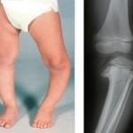 blount disease in children picture