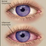 pink eye conjunctivitis children