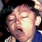 whooping cough children infant