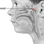 Enlarged or Swollen Adenoids Symptoms in Children