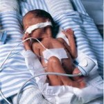 Low Birth Weight Causes And Risks