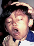 Whooping Cough In Infants And Children